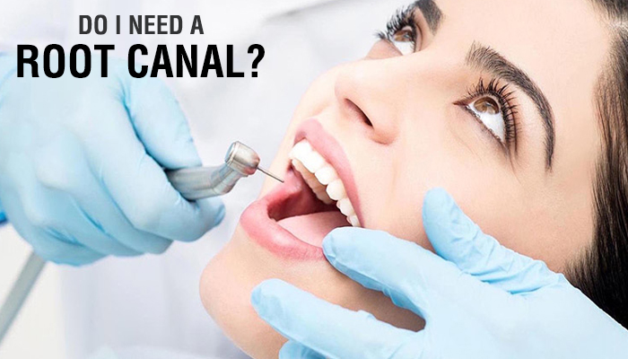 root canal treatment sanjose