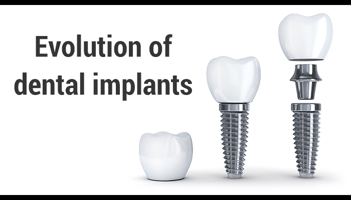 Evolution Dental Implants